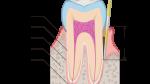 根管治療の成功率のアイキャッチ画像