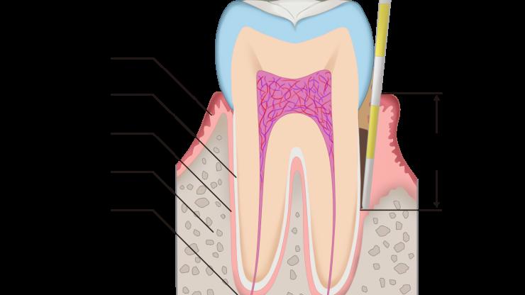 歯周病の検査について(口腔内写真、x線写真編)のアイキャッチ画像